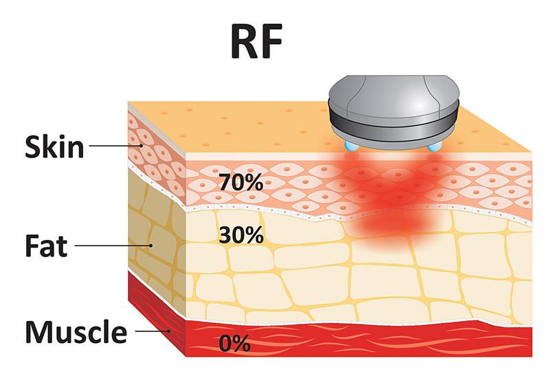 Manipolo-RF-sul-tessuto